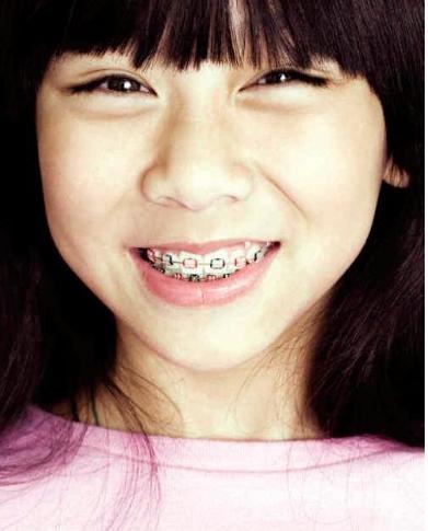 儿童牙齿矫正时机的选择